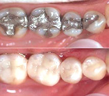 Crowns before and after